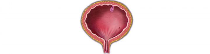 New EAUN guidelines to benefit bladder cancer patients